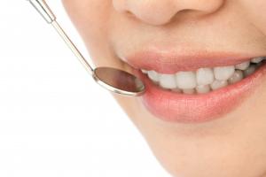 PMTC 虫歯・歯周病予防できるプロのクリーニング