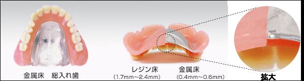 金属床と保険適用の入れ歯の違い